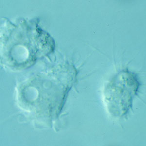 Figure B: Trophozoites of <em>Acanthamoeba</em> sp. from culture. Notice the slender, spine-like acanthapodia.