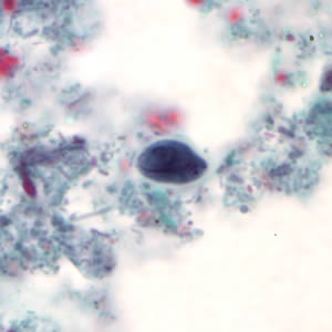 Figure A: <em>G. duodenalis</em> cyst stained with trichrome.