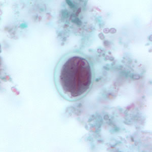 Figure G: <em>G. duodenalis</em> cyst stained with trichrome. Sometimes the cytoplasm of the cyst may retract from the cell wall.
