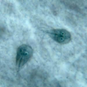 Cdc Dpdx Giardiasis