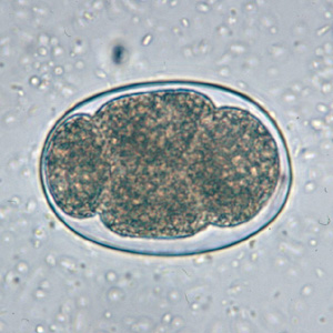Figure D: Hookworm egg in an unstained wet mount.