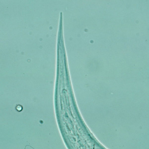 Figure D: Close-up of the posterior end of a filariform (L3) hookworm larva.