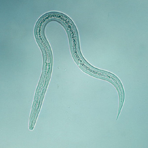 CDC - DPDx - Hookworm