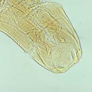 Figure A: Adult worm of <em>Ancylostoma duodenale</em>. Anterior end is depicted showing cutting teeth.