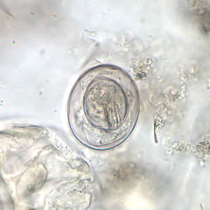 Figure B: Egg of <em>H. nana</em> in an unstained wet mount. Note the presence of hooks in the oncosphere and polar filaments within the space between the oncosphere and outer shell.