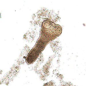 Figure B: Scolex of <em>H. nana</em> in an unstained wet mount of stool. Image courtesy of Dr. David Bruckner.