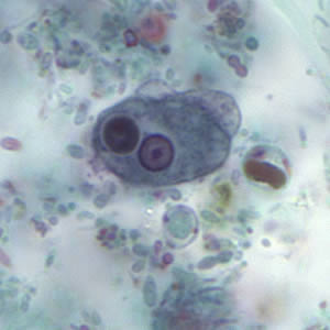 information about e histolytica Entamoeba histolytica is a nationally and provincially notifiable disease e dispar is a harmless commensal with no public health implications colonization of the stool with e dispar suggests potential exposure to other pathogens with fecal–oral transmission but does not cause diarrhea.