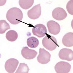 Babesia MO-1 in a thin blood smear stained with Giemsa. Babesia sp. cannot be identified to the species level by morphology alone; additional testing, such as PCR, is always recommended. Note the vacuolated parasites (black arrows) in the image.