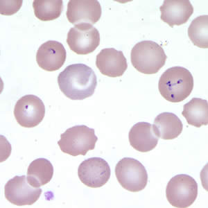 Babesia sp. in a thin blood smear stained with Giemsa.