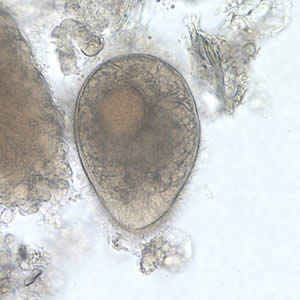 Balantidium coli trophozoite in a wet mount, 500× magnification. Note the visible cilia on the cell surface.