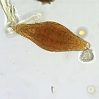 A public health laboratory sent images to DPDx for telediagnosis assistance to confirm their parasite identification of a 160 micrometer long object. The patient was a refugee from Africa.