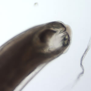 A worm measuring approximately 11 mm in length was sent to CDC for identification by a laboratory in the Southeastern United States. The following images were obtained by placing the worm on a 1
