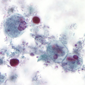 Images from a trichrome stained fecal smear were submitted to DPDx telediagnosis assistance from a public health laboratory. Parasites were suspected and further confirmation was needed. The patient was a 32-year-old male who had diarrhea; no travel history was known.