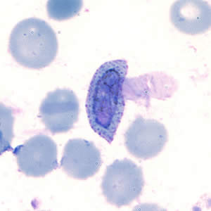 A patient was seen at a hospital in Rwanda with headache, fever, and chills. A thin blood smear was made, stained with Giemsa, and examined.