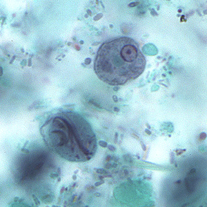Images captured from a trichrome stained smear were submitted to DPDx for diagnostic assistance. The smears were made from a polyvinyl-alcohol (PVA) preserved fecal specimen, but no other patient or specimen information was given.