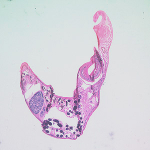 A 47-year-old male with travel history to the Galapagos Islands, Ecuador and Colombia presented to his health care provider with follicular conjunctivitis. A worm-like object measuring approximately 3.0 mm was removed from his eye and sent to a pathology laboratory for analysis.
