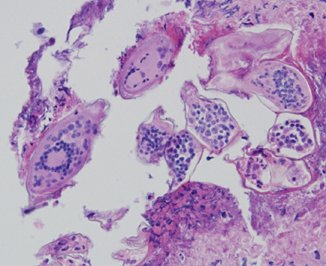 A 58-year-old female who had emigrated from Africa was seen by her health care provider for complications with squamous cell carcinoma of the cervix.