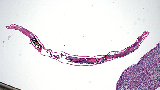 A worm-like object was observed during a routine colonoscopy screening of an adult living in Hawaii. The specimen was collected, sectioned, and stained with hematoxylin-and-eosin (H&E).