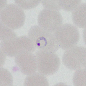 A 22-year-old man had a post-travel medical evaluation that included hematologic work-up after returning from an 11-day missionary trip to Honduras.  Blood was collected in EDTA at a medical center and thin smears were prepared and stained for examination.