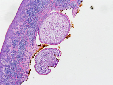 A 71-year-old female presented to her health care provider with a nodule on her back. The nodule was removed and sent to Pathology for histological work-up.