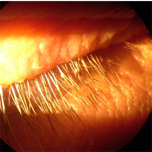 An adult patient with right eye and eyelid irritation sought medical attention at an eye clinic. Upon examination, living organisms and what appeared to be egg cases were identified on the patient's eyelids and eyelashes.
