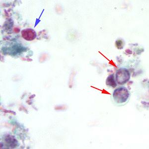 Cryptosporidium acid fast staining cocci