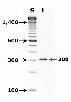 Agarose gel for a PCR diagnostic test for detection of Cyclospora DNA