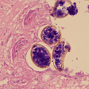 Eggs of D. latum in a cross-section of a gravid proglottid, stained with hematoxylin-and-eosin (H&E).