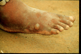 The female guinea worm induces a painful blister.
