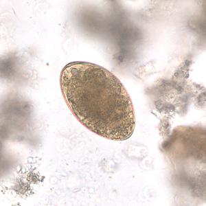 telur Echinostoma
