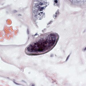 تخم انتروبیوس ورمیکولاریس
