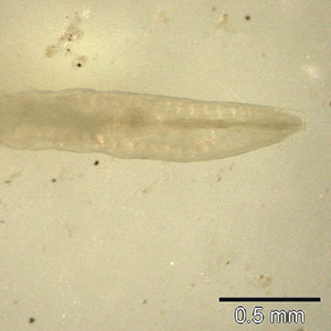 Anterior end of an adult female of E. vermicularis, recovered from a colonscopy. Image contributed by the South Carolina Department of Health and Environmental Control, Bureau of Laboratories.