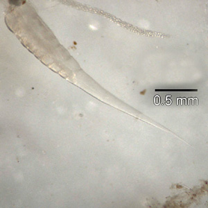 Posterior end of the worm in Figure D. Note the long, slender pointed tail.