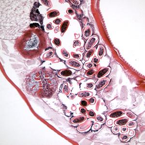 مقطع کرم بالغ ماده انتروبیوس ورمیکولاریس