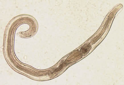 Adult male of E. vermicularis from a formalin-ethyl acetate (FEA) concentrated stool smear. The worm measured 1.4 mm in length. Image contributed by the Centre for Tropical Medicine and Imported Infectious Diseases, Bergen, Norway.