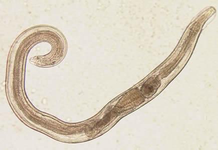 CDC - DPDx - Enterobiasis