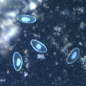 Eggs of E. vermicularis viewed under UV microscopy.