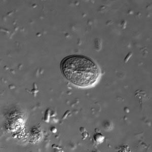 مورفولوژی کیست ژیاردیا لامبلیا، لام مرطوب، میکروسکوپ فاز کنتراست(Phase Contrast Microscope) با بزرگنمایی 100x