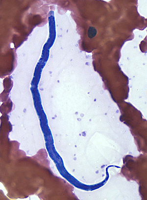 Microfilaria of L. loa in a thin blood smear, stained with Giemsa.
