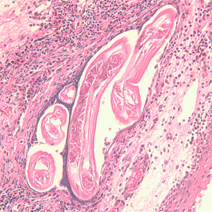 Adults of Brugia spp. in tissue.