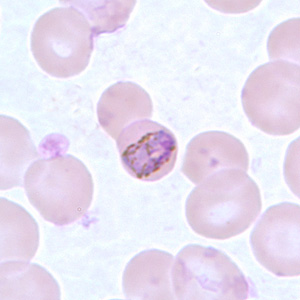 Band-form trophozoites of P. malariae in a thin blood smear.