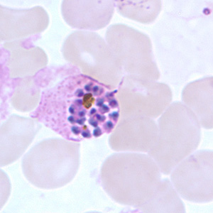 Schizonts of P. ovale in thick and thin blood smears.
