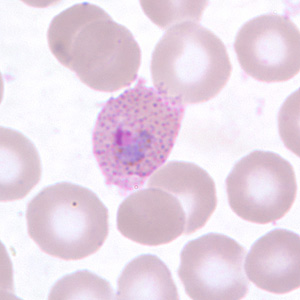 Trophozoite of P. ovale in a thin blood smear.  Note the fimbriation and Schüffner's dots.
