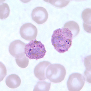 Trophozoites of P. ovale in thick and thin blood smears.