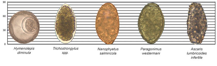 Images of Hymenolepis diminuta, Trichostrongylus spp., Nanophyetus salmincola, Paragonimus westermani, and an infertile egg of Ascaris lumbricoides along a scale for reference.