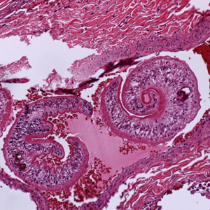 Schistosoma adults in tissue.