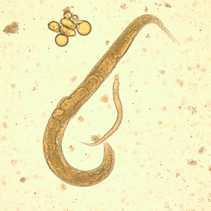 strongyloides stercoralis betina hidup bebas