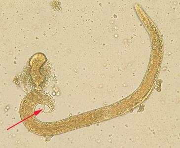 Strongyloides stercoralis jantan hidup bebas