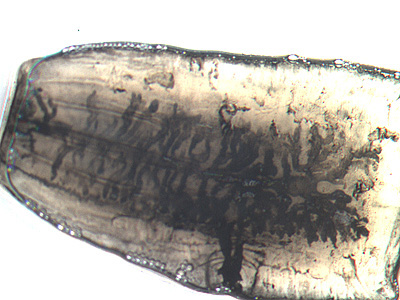 Mature proglottid of T. saginata, stained with India ink. Note the number of primary uterine branches (>12). Image courtesy of the Orange County Public Health Laboratory, Santa Ana, CA.