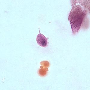 تروفوزئیت تریکوموناس واژینالیس، رنگ آمیزی گیمسا، میکروسکوپ نوری